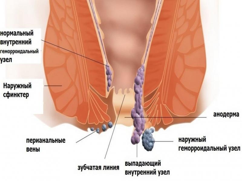 геморроидальные узлы чем лечить