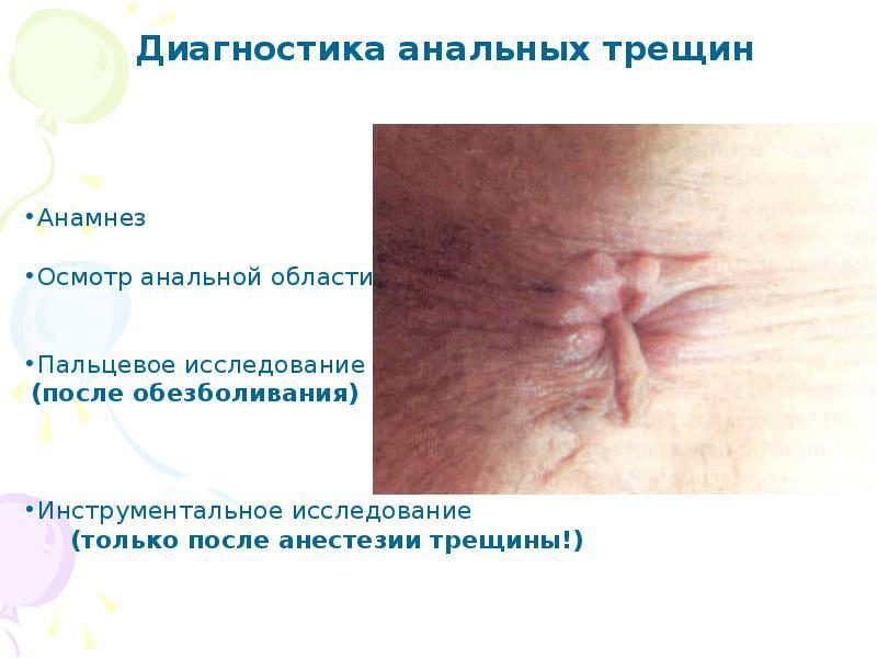 как лечить анальную трещину при геморрое