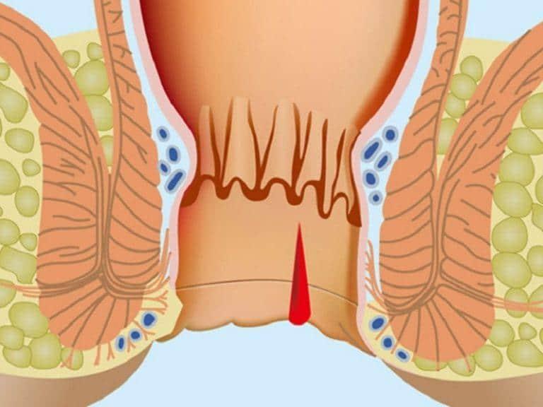 У детей трещины в заднем проходе лечение в домашних условиях