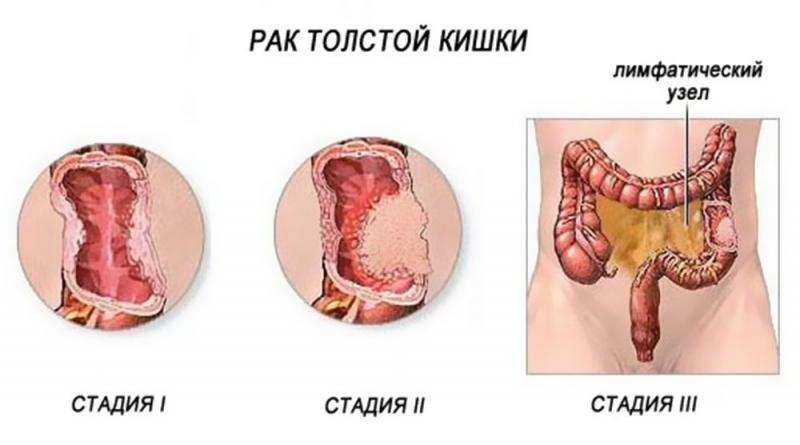 рак толстой кишки симптомы на ранних стадиях