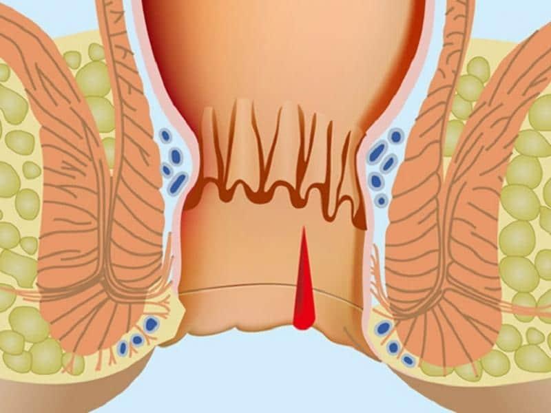 трещина прямой кишки лечение симптомы