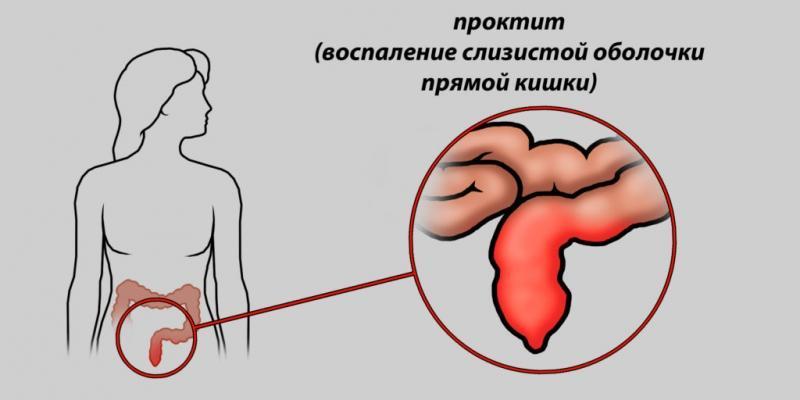 воспаление прямой кишки симптомы и лечение народными средствами