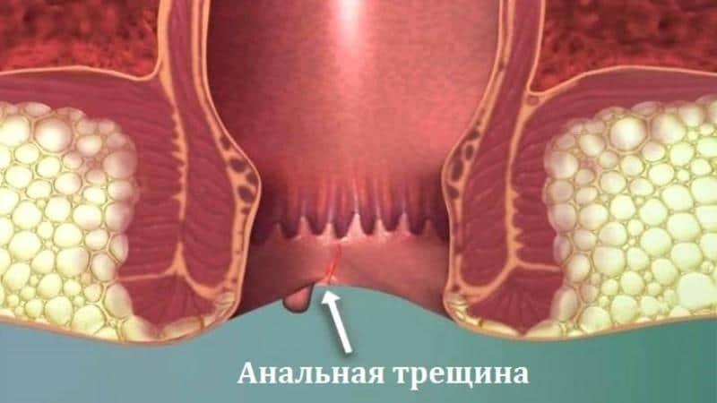 анальная трещина симптомы