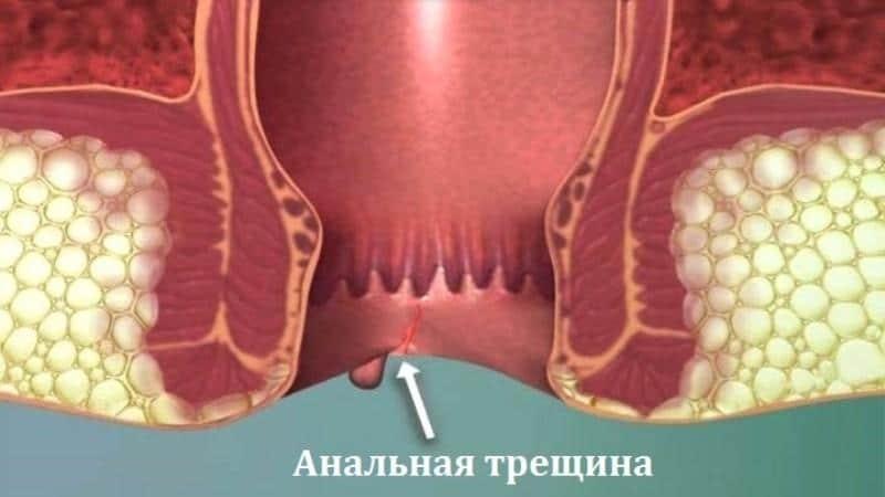 Болит низ живота и поясница опоясывающая боль в желудке и отдает в спину