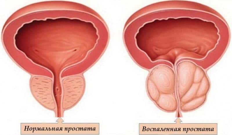 быстрое лечение простатита у мужчин лечение в домашних условиях