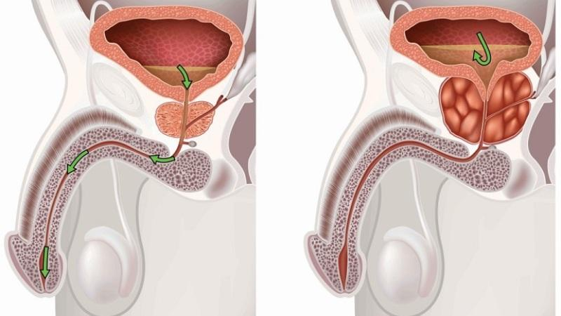 какие первые симптомы мужского простатита