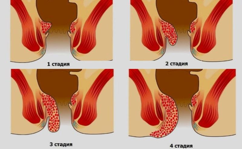 как выглядит геморрой у мужчин начальная стадия лечение фото