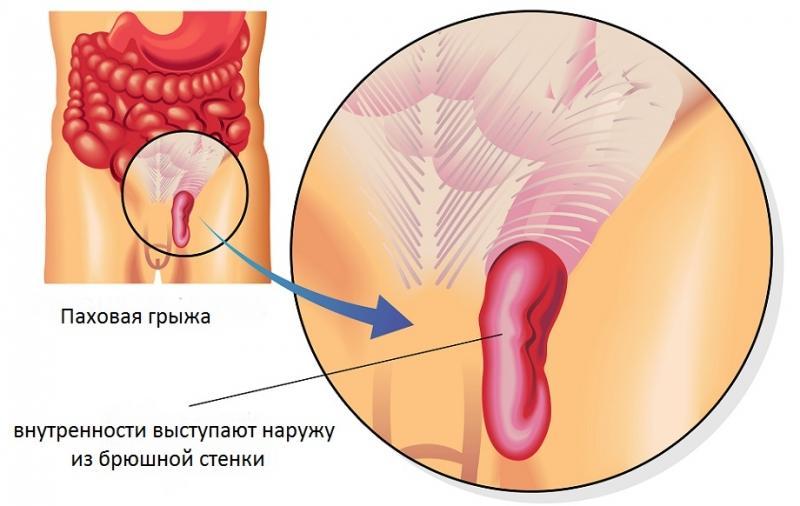 грыжа толстой кишки симптомы