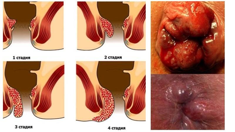 Геморрой фото симптомы лечение. Как лечить геморрой