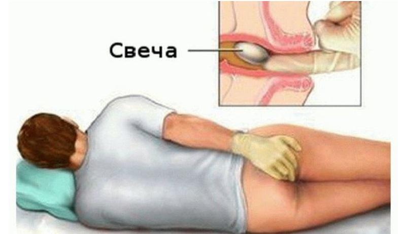 симптомы геморроя у мужчин симптомы лечение