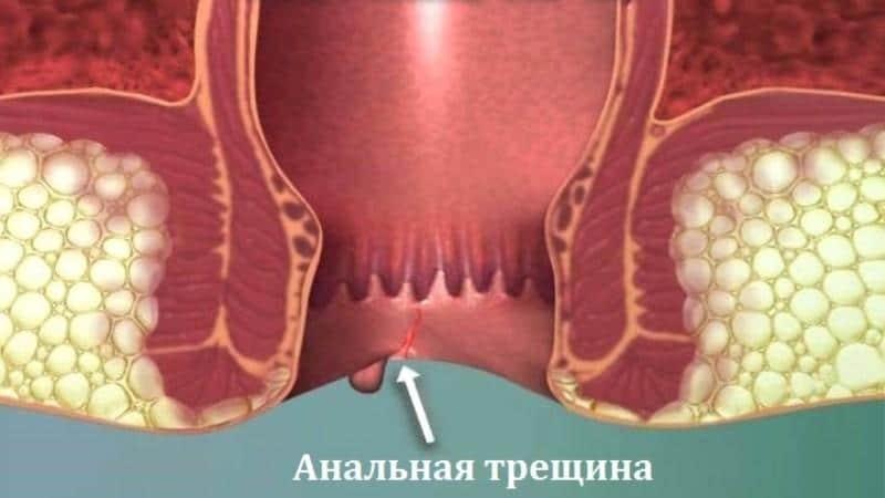 лечение наружного геморроя у мужчин