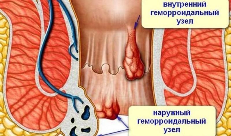 лечения геморроя по Кондакову