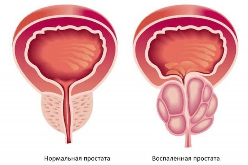 лечение начальной стадии простатита