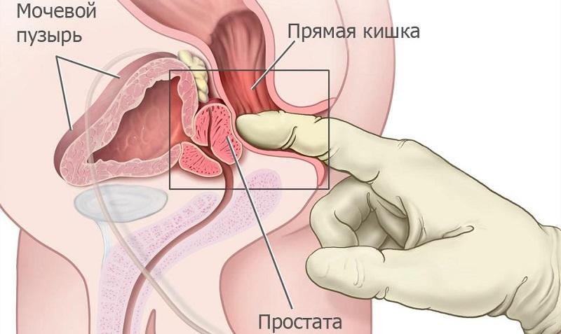 эффективное лечение простатита