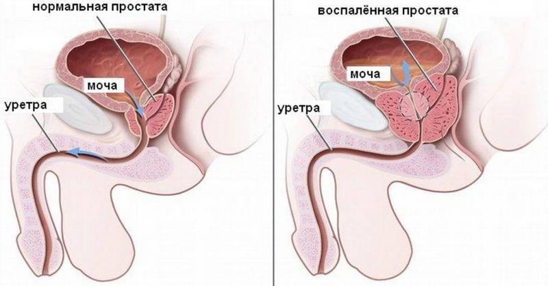 начальная стадия простатита симптомы