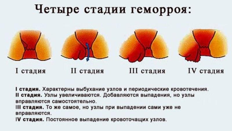 фото геморрой на начальной стадии фото чем лечить