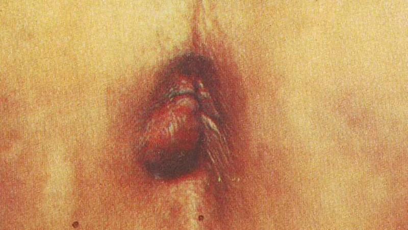 первые симптомы при геморрое