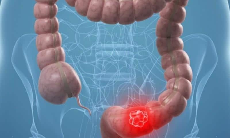 рак прямой кишки симптомы и первые признаки