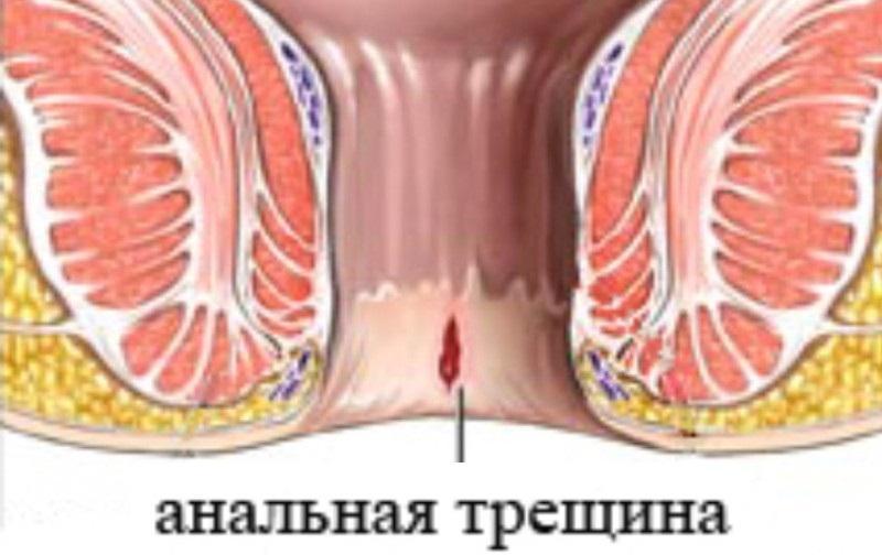 трещина анального отверстия лечение