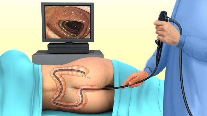 признаки язвенного колита кишечника