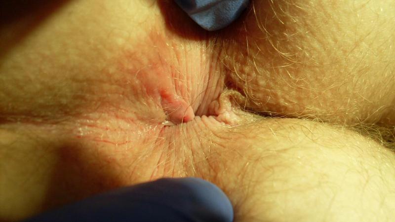 Что делать если после операции на геморрой идет кровь