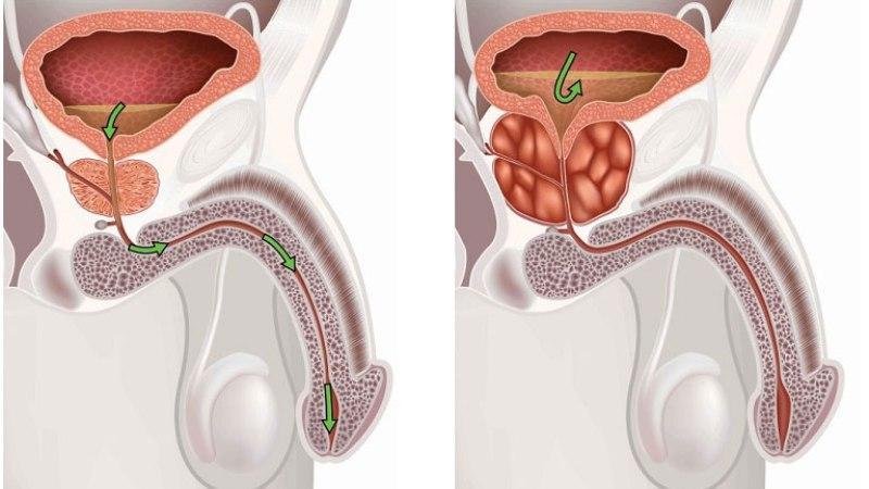 Терапия хронического простатита