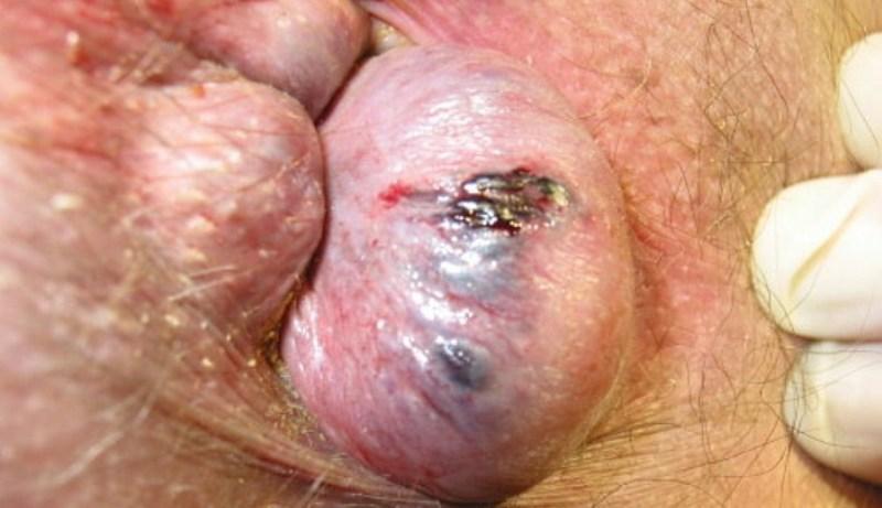 лечение препаратами острого геморроя