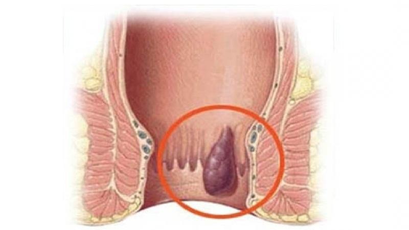 острый геморрой симптомы и лечение