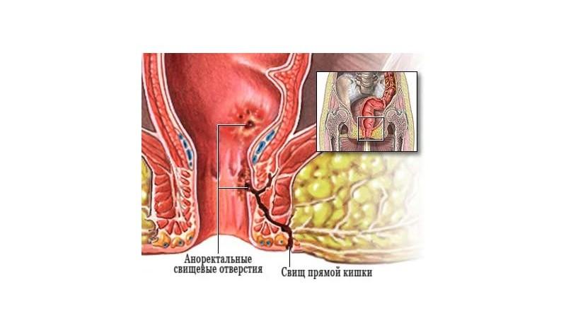лечение свища прямой кишки без операции народными средствами
