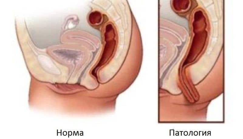 Выпадение прямой кишки: лечение в домашних условиях