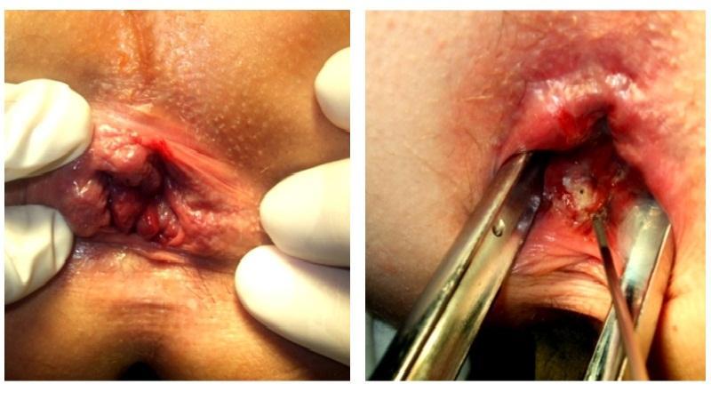 геморрой внутри ануса