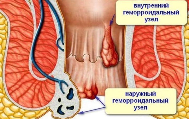 Чем лечить геморроидальные узлы в домашних условиях 991