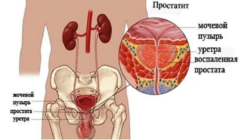 лечение острого простатита у мужчин препараты