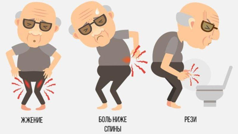 признаки острого простатита
