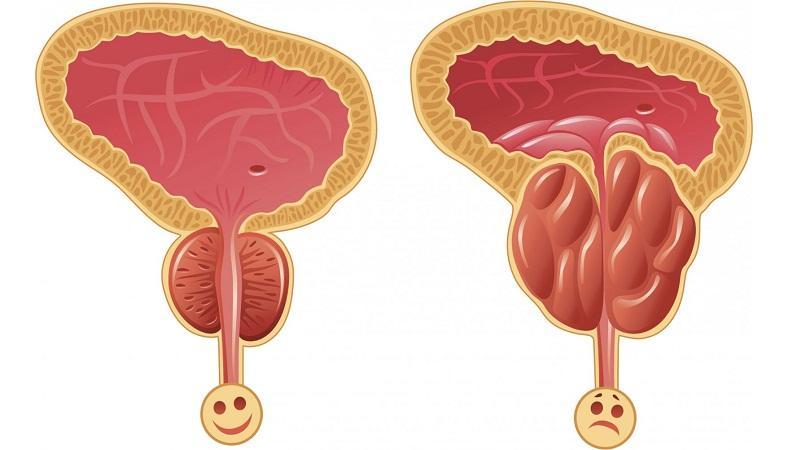 причины возникновения простатита у мужчин