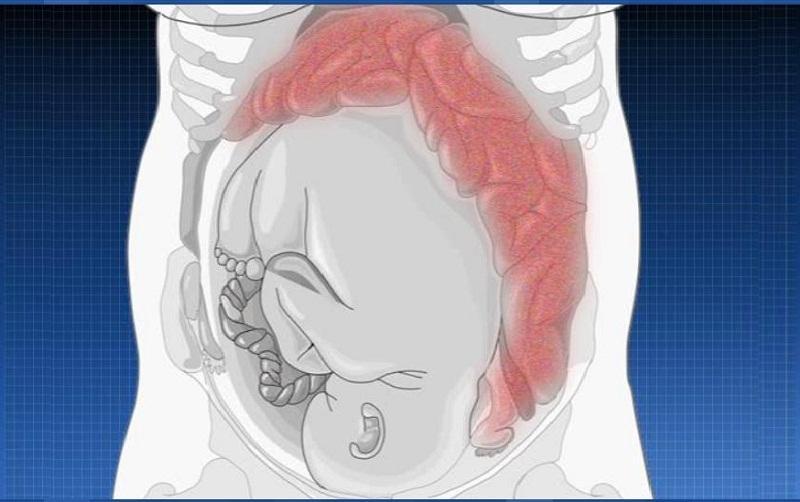 женщина в положении и давление на кишечник