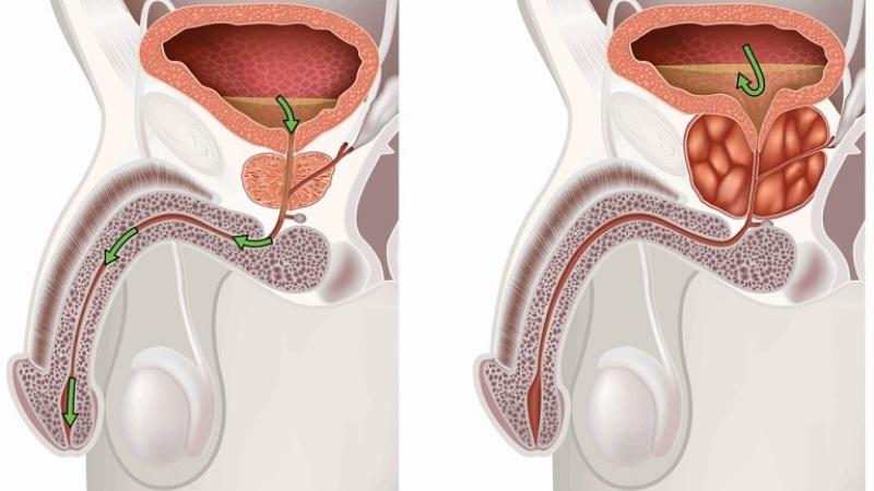 Массаж простаты при обострении простатита