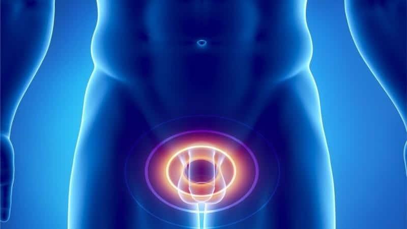 признаки хронического простатита у мужчин