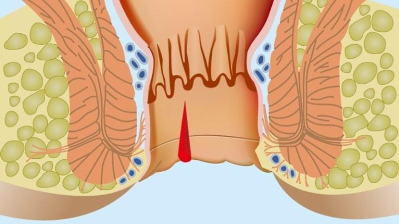 воспаление ануса лечение