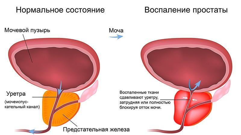 признаки аденомы простаты и простатита
