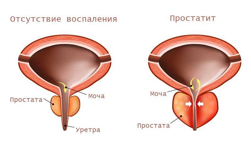 Антибиотики для лечения простатита у мужчин