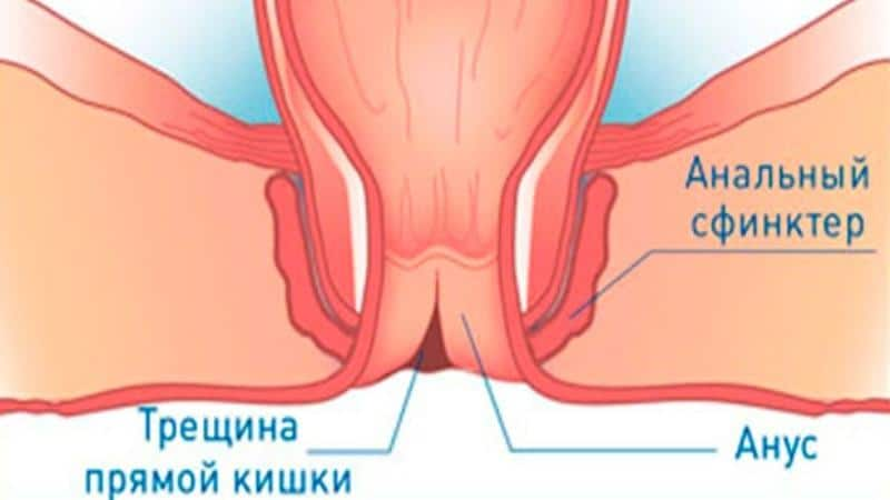 боль в заднем проходе при дефекации