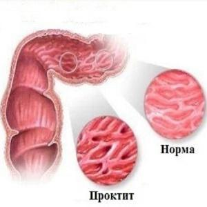 боли в заднем проходе после опорожнения кишечника