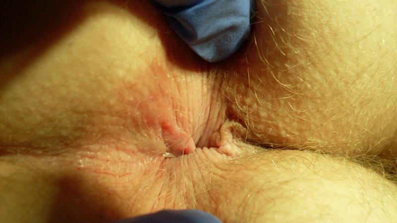 zud-v-anuse-posle-analnogo-seksa