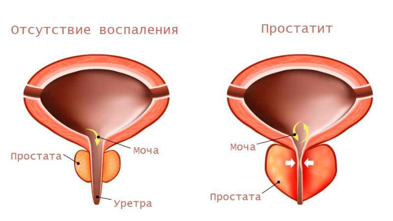 как простата сжимает уретру
