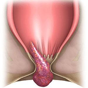 Чем лечить шишки геморроя при беременности