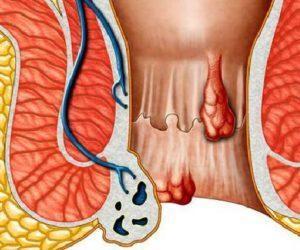 Геморроидальные шишки: фото и средства лечения шишек, чем они отличаются от геморроидальных узлов