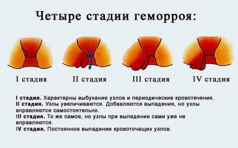 геморрой лечение после родов