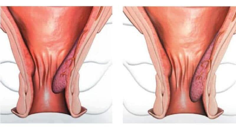 как избавиться от геморроидальной шишки