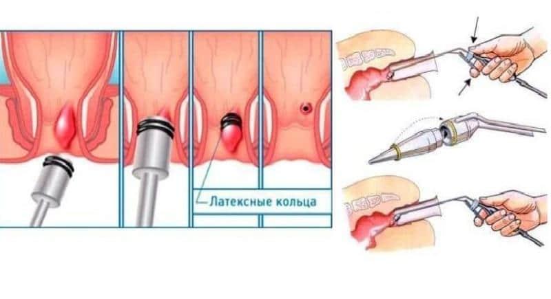 Геморроя шишки как вылечить